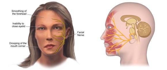 pareza bolii articulare