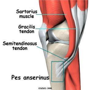 tratamentul bursitei de gâscă a genunchiului)