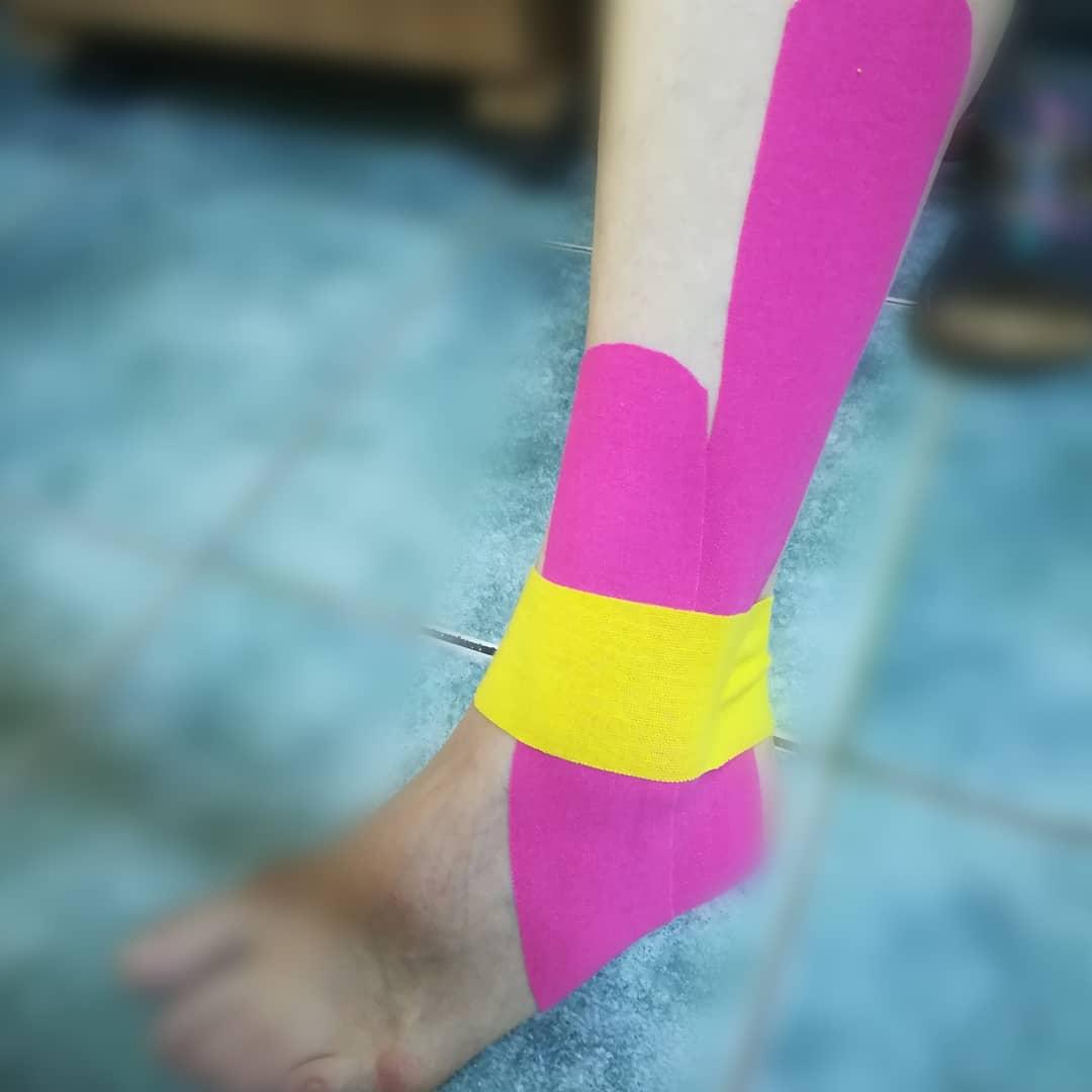 leziune grad 3 corn posterior menisc intern dureri la nivelul articulațiilor și creștere a erei